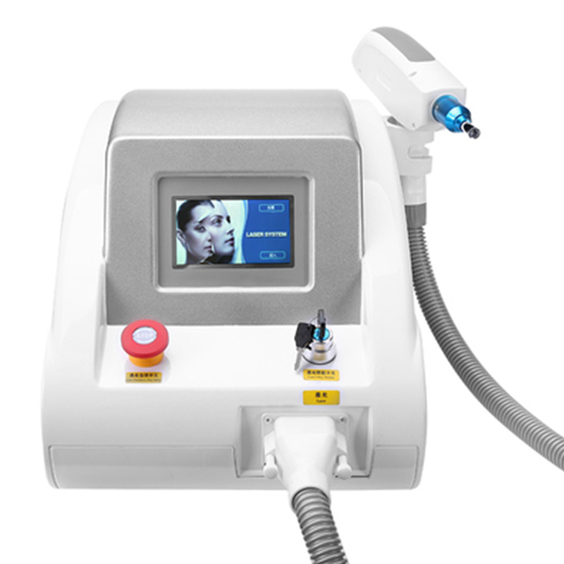 yag laser tattoo removal reviews