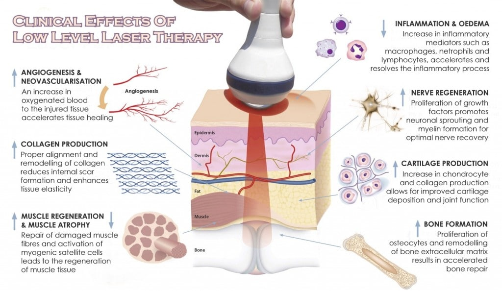 laser treatment for pain reviews