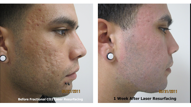 co2 laser for acne scars reviews