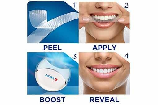 led teeth whitening kit review