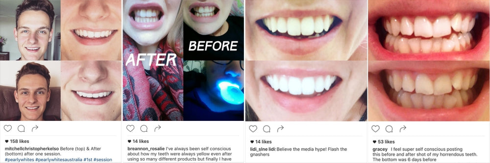 pearlys teeth whitening powder reviews