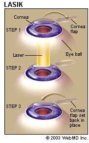 laser eye surgery reviews 2015