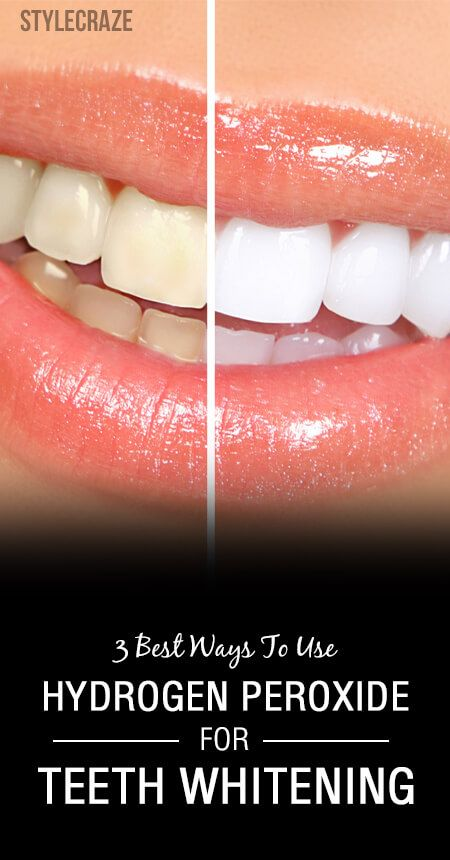 hydrogen peroxide teeth whitening review