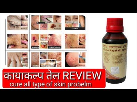 divya kit review in hindi