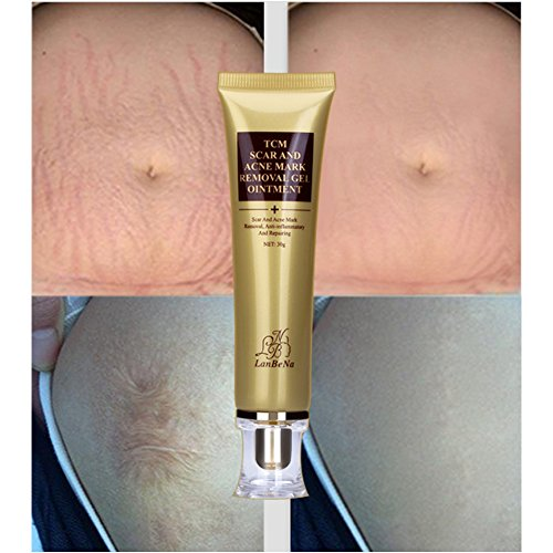 acne scar removal products reviews