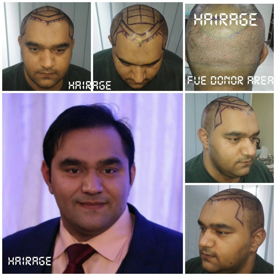 b perfect hair transplant reviews