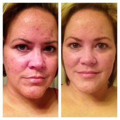 nerium reviews for acne scars