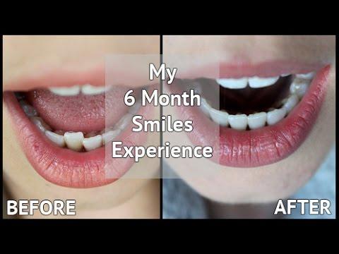 sure smiles teeth whitening reviews
